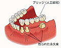 implant-img-04