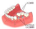 implant-img-14